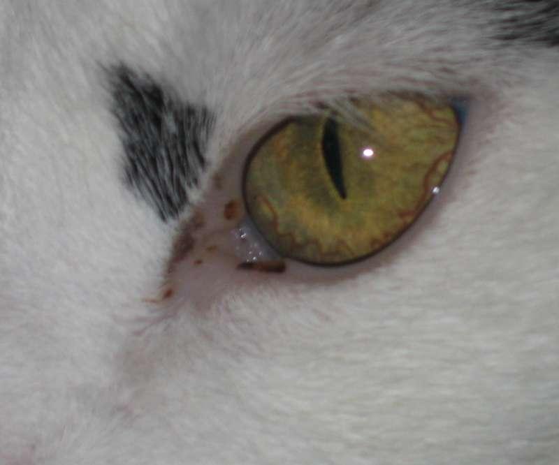 Dreck Im Auge